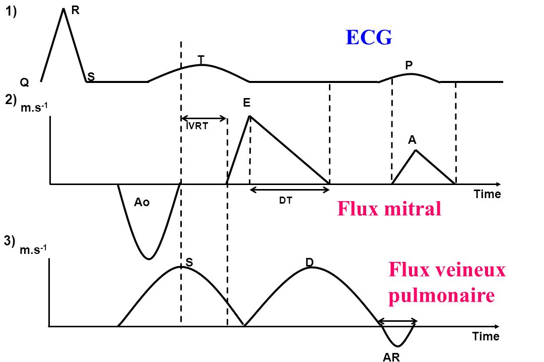 Time m.s -1 IVRT Time m.s -1 E A SD AR 3) 1) 2) DT P T R S Q Ao Flux mitral Flux veineux pulmonaire ECG