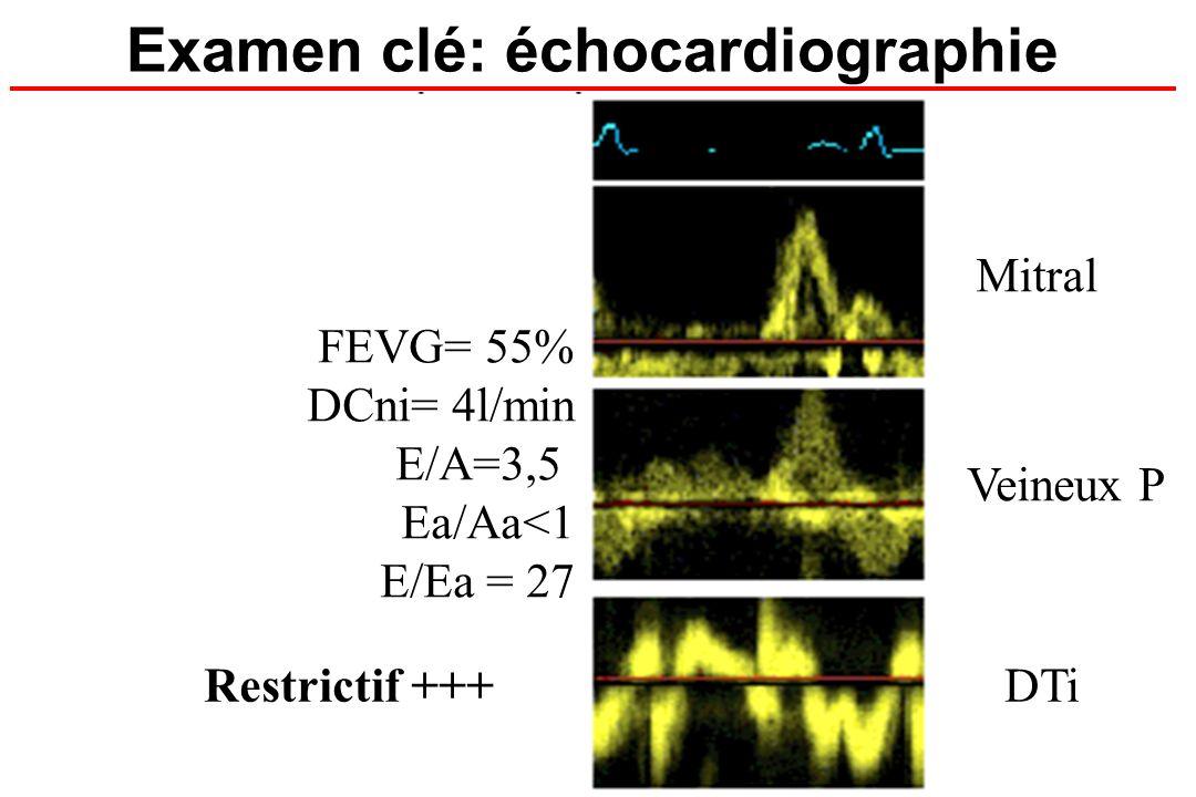 Examen clé: échocardiographie FEVG= 55% DCni= 4l/min E/A=3,5 Ea/Aa<1 E/Ea = 27 Mitral Veineux P DTiRestrictif +++