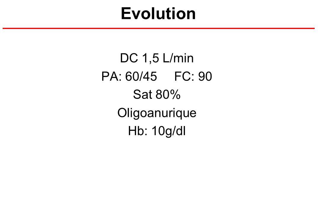 Evolution DC 1,5 L/min PA: 60/45 FC: 90 Sat 80% Oligoanurique Hb: 10g/dl