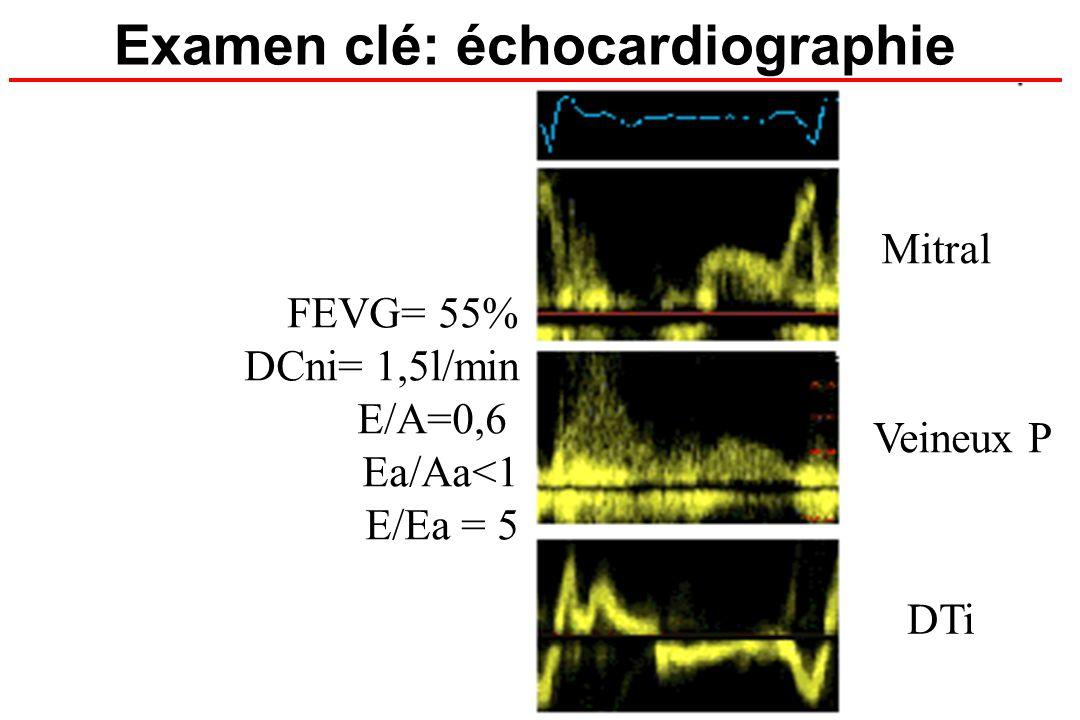 Examen clé: échocardiographie FEVG= 55% DCni= 1,5l/min E/A=0,6 Ea/Aa<1 E/Ea = 5 Mitral Veineux P DTi