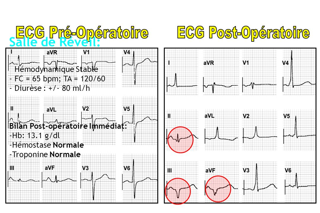 Salle de Réveil: - Hémodynamique Stable - FC = 65 bpm; TA = 120/60 - Diurèse : +/- 80 ml/h Bilan Post-opératoire Immédiat: -Hb: 13.1 g/dl -Hémostase N