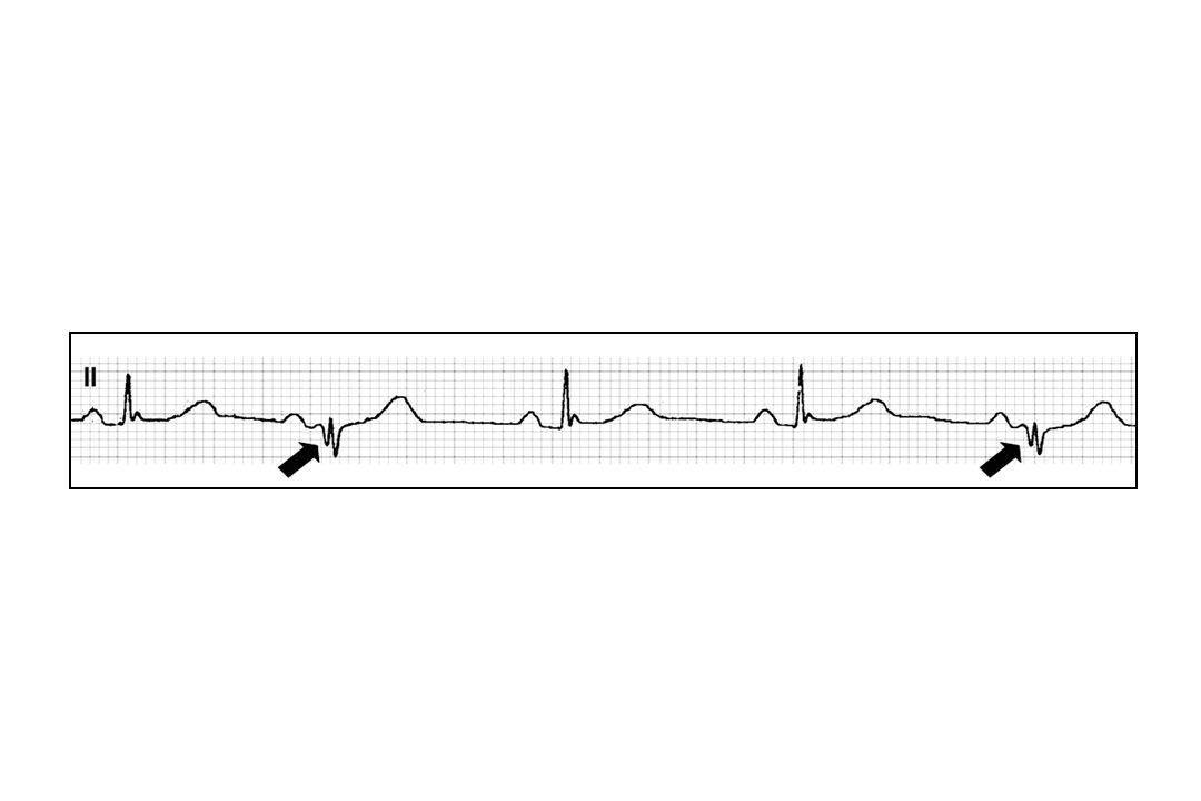 -QRS élargi -PR <0.15s -Ondes DELTA 2 hypothèses: -Ralentissement de la conduction dans le Nœud AV: processus ischémique localisé - Accélération de la conduction dans le faisceau accessoire liée aux modifications de lactivité sympathique