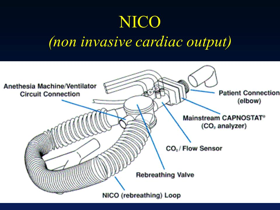 Principe de Fick appliqué au CO 2 Réinhalation partielle des gaz expirés NICO (non invasive cardiac output)
