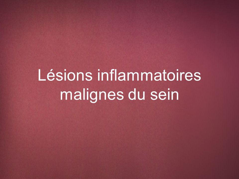Lésions inflammatoires malignes Invasion locale de la peau par un cancer primaire, récurrent ou à dissémination métastatique Aussi connue sous le nom de plaie bourgeonnante ou plaie cutanée maligne