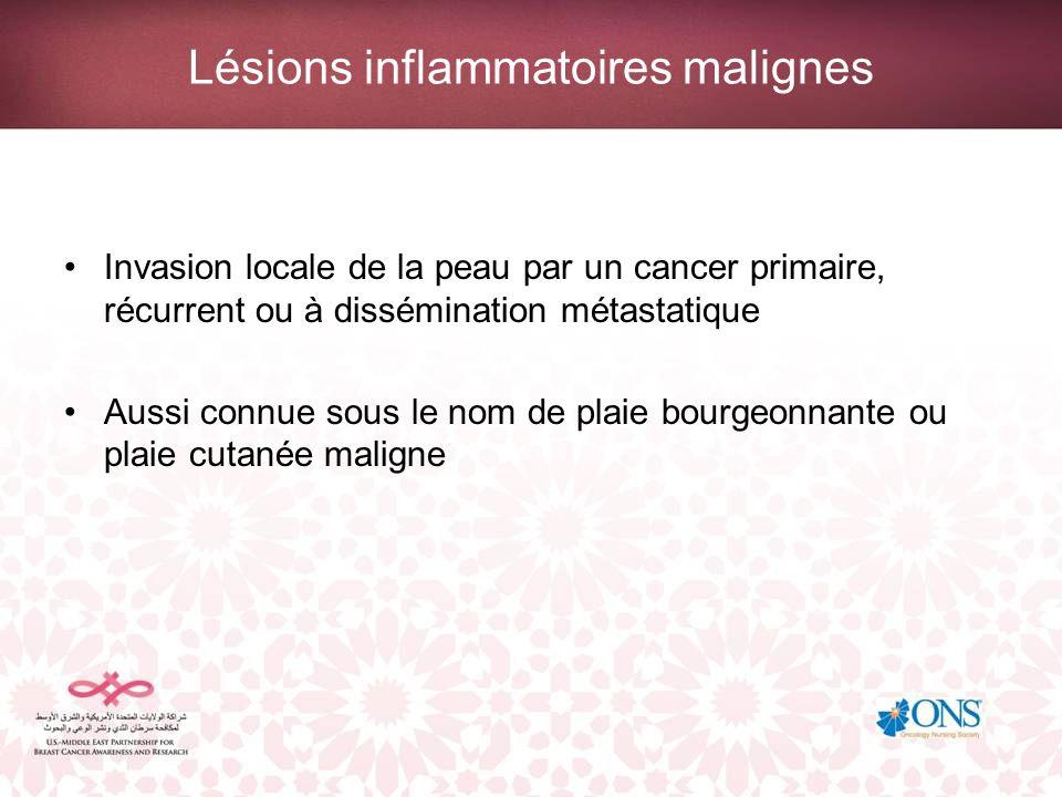 Lésions inflammatoires malignes Invasion locale de la peau par un cancer primaire, récurrent ou à dissémination métastatique Aussi connue sous le nom