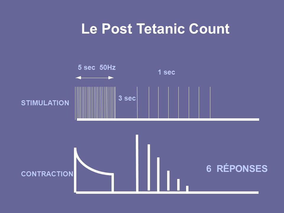 Le Post Tetanic Count 5 sec 50Hz STIMULATION CONTRACTION 6 RÉPONSES 1 sec 3 sec