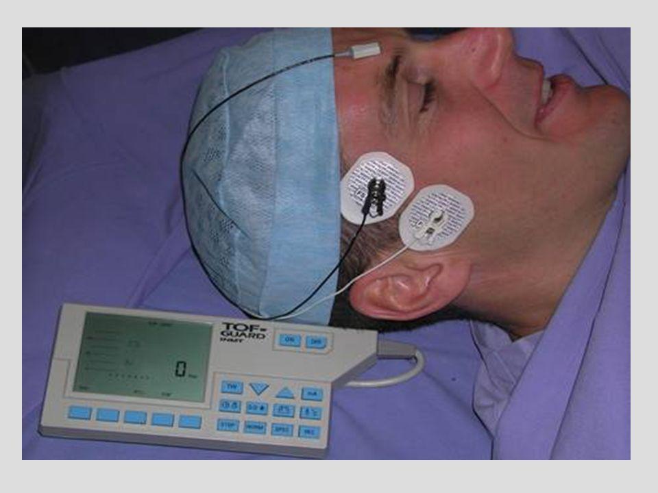 Relation TOF / PTC Viby-Mogensen Anesthesiology 1981 nombre de réponses au PTC Délai séparant la réapparition de la première réponse au TOF 50 min 40 30 20 10 0 -10 10 monitorage sur ladducteur du pouce 2468
