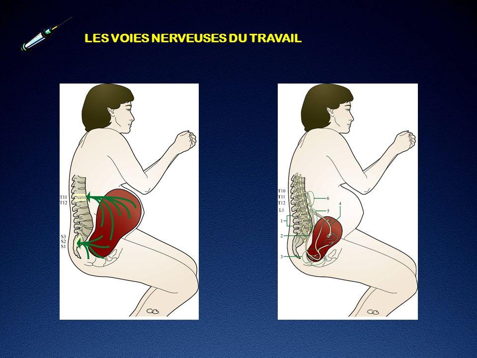 LA RACHI – PERI COMBINEE : Avantages Collis RE et coll International J Obstet Anesth 1994;3:75-81