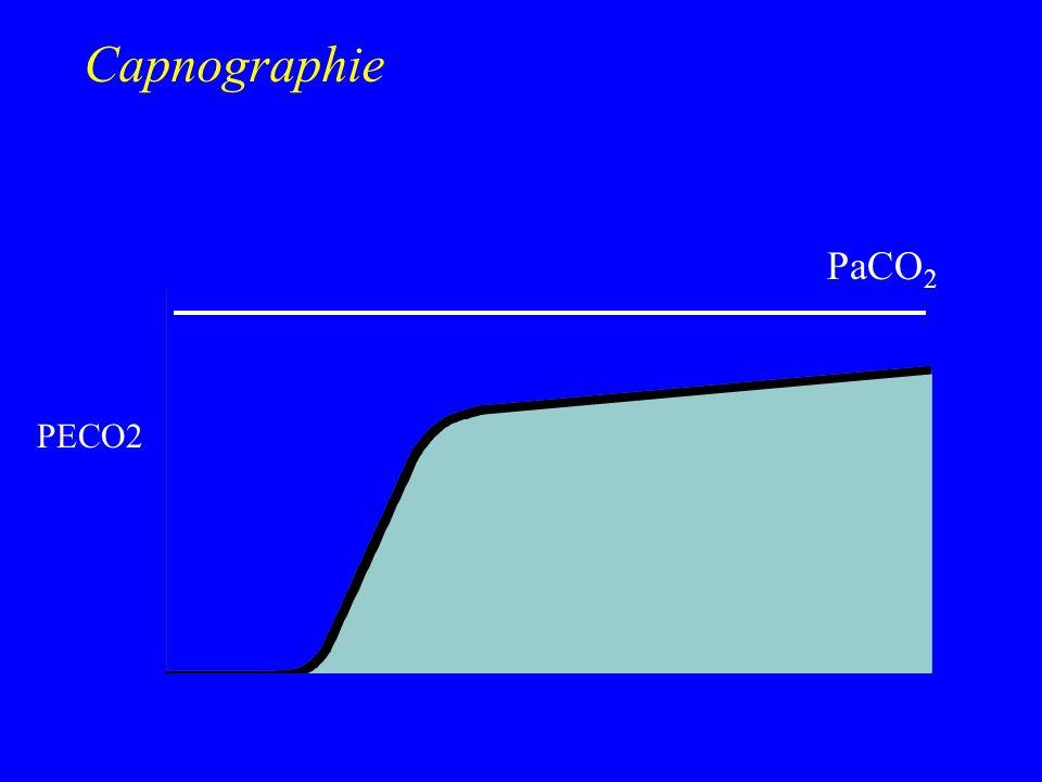 PeCO 2 T PaCO 2 Capnographie PetCO 2 10 - 20 - 30 - PECO2