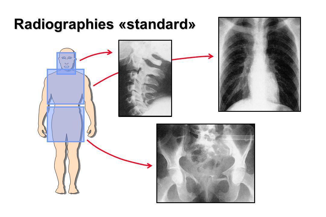 Radiographies «standard»