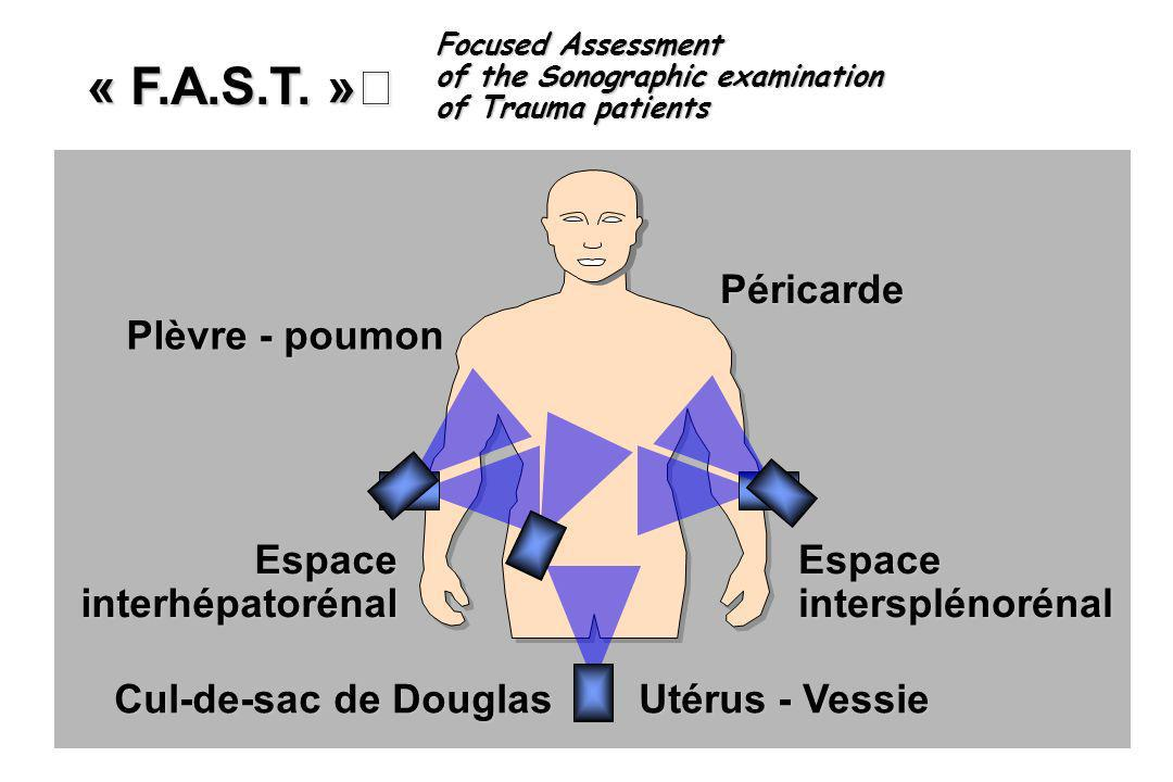 Cul-de-sac de Douglas Utérus - Vessie EspaceintersplénorénalEspaceinterhépatorénal Plèvre - poumon Péricarde « F.A.S.T. » Focused Assessment of the So