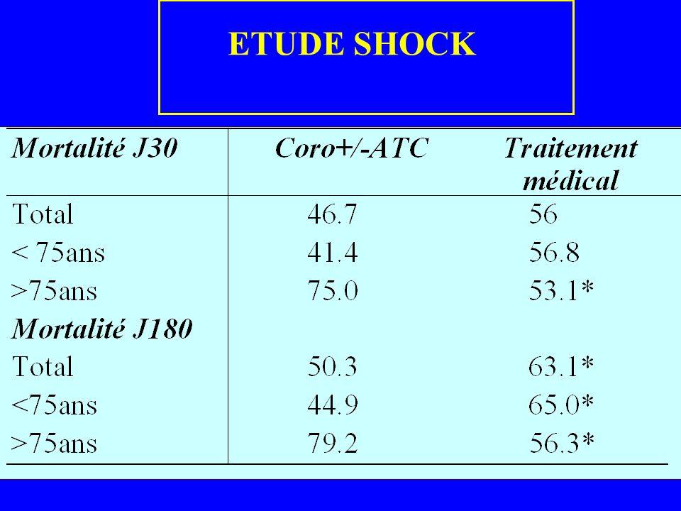 ETUDE SHOCK
