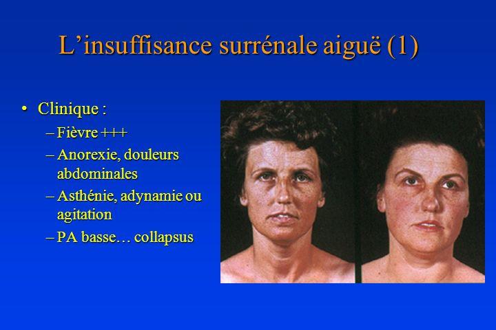 Linsuffisance surrénale aiguë (1) Clinique :Clinique : –Fièvre +++ –Anorexie, douleurs abdominales –Asthénie, adynamie ou agitation –PA basse… collaps
