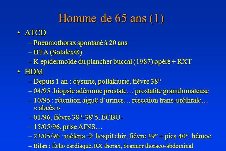 Homme de 65 ans (1) ATCDATCD –Pneumothorax spontané à 20 ans –HTA (Sotalex®) –K épidermoïde du plancher buccal (1987) opéré + RXT HDMHDM –Depuis 1 an