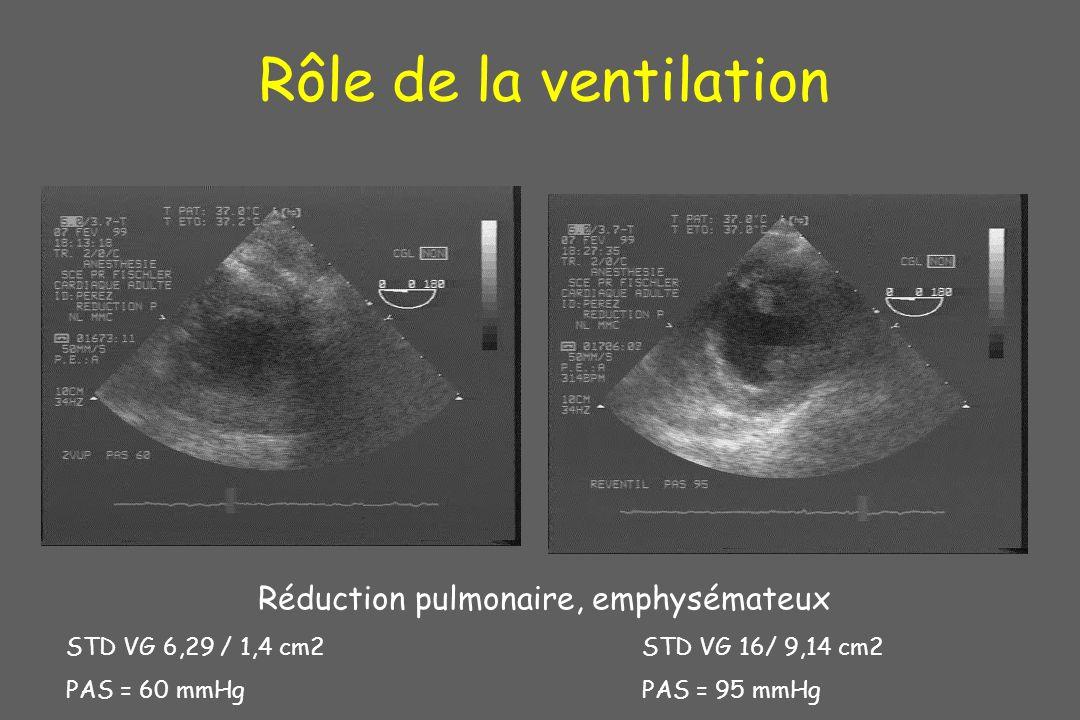 Rôle de la ventilation Réduction pulmonaire, emphysémateux STD VG 6,29 / 1,4 cm2STD VG 16/ 9,14 cm2 PAS = 60 mmHgPAS = 95 mmHg