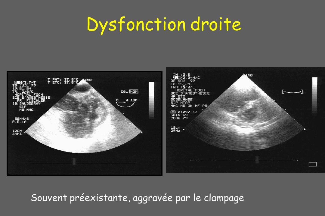 Dysfonction droite Souvent préexistante, aggravée par le clampage