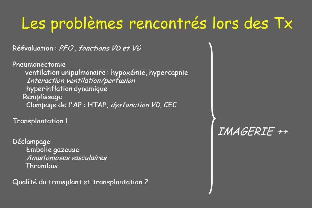 Les problèmes rencontrés lors des Tx Réévaluation : PFO, fonctions VD et VG Pneumonectomie ventilation unipulmonaire : hypoxémie, hypercapnie Interact