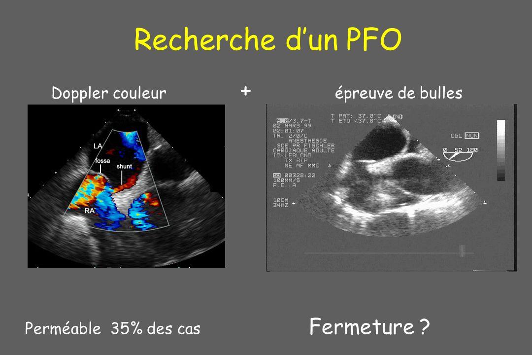 Recherche dun PFO Perméable 35% des cas Fermeture ? Doppler couleur + épreuve de bulles