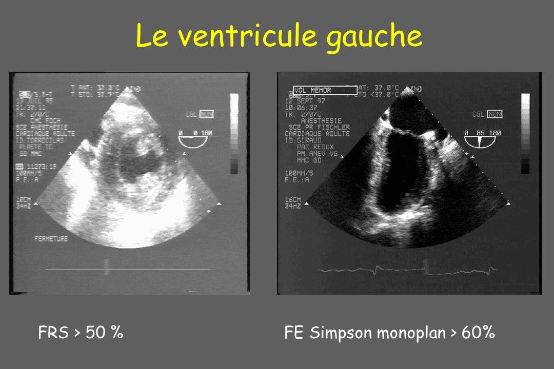 Le ventricule gauche FRS > 50 %FE Simpson monoplan > 60%