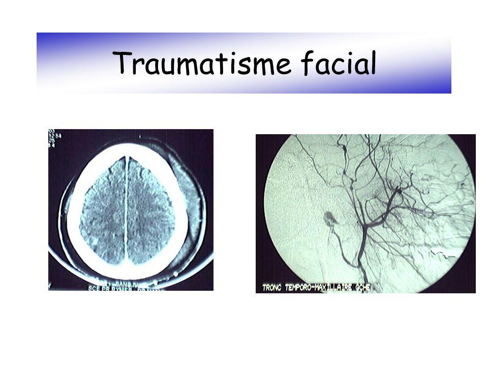 Traumatisme facial