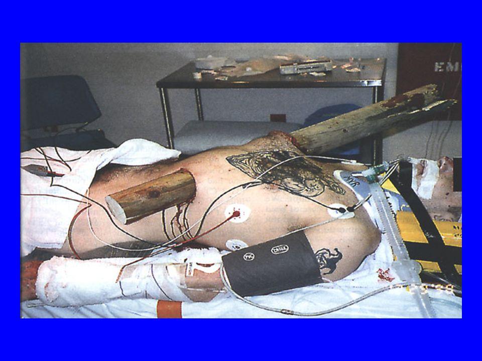 Plaies abdominales antérieures TDM –Avantage: sensible pour les lésions des organes pleins et du rétropéritoine –Inconvénient: peu sensible pour les lésions des viscères creux et du diaphragme