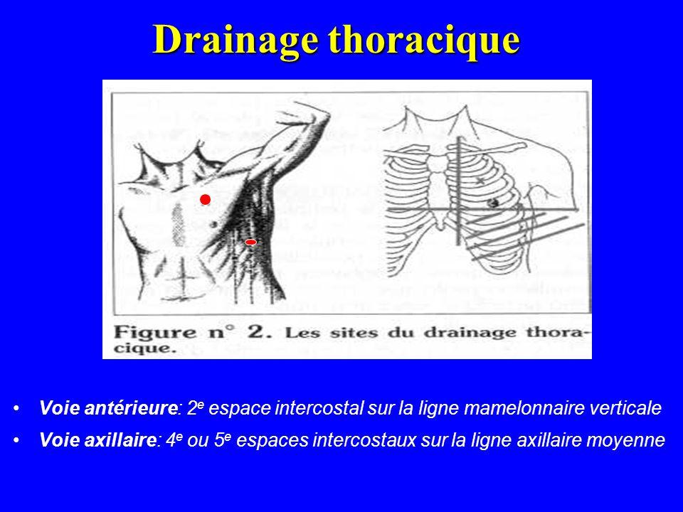 Drainage thoracique Voie antérieure: 2 e espace intercostal sur la ligne mamelonnaire verticale Voie axillaire: 4 e ou 5 e espaces intercostaux sur la