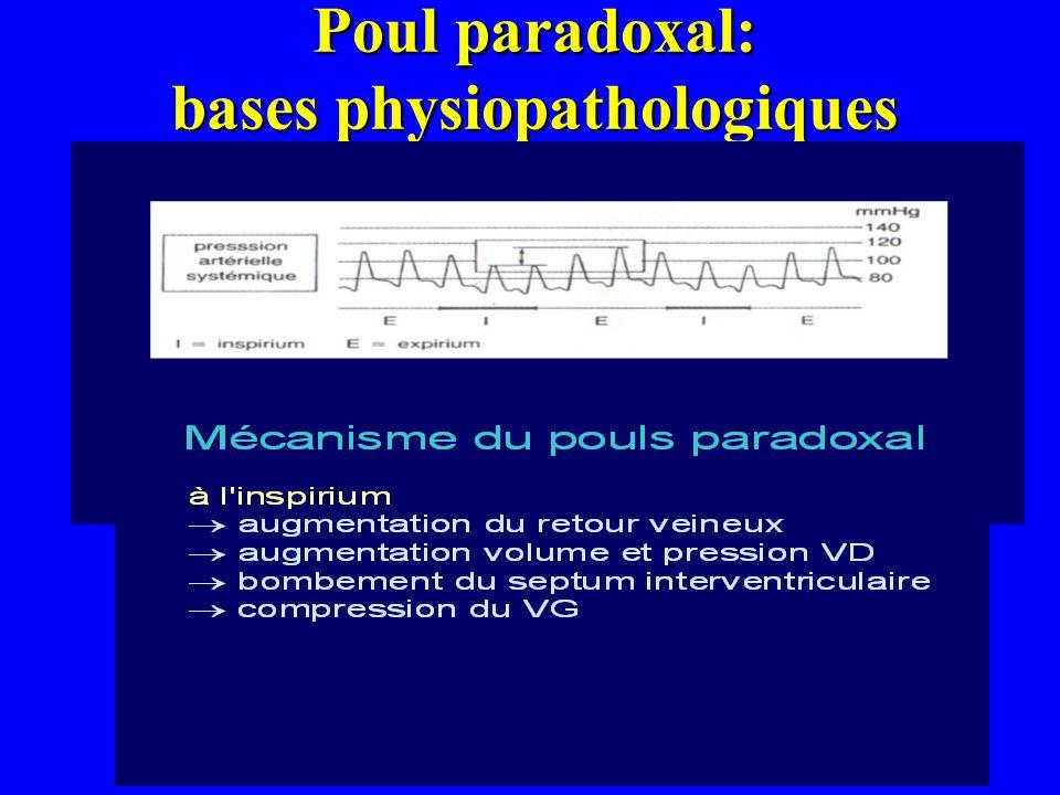 Poul paradoxal: bases physiopathologiques