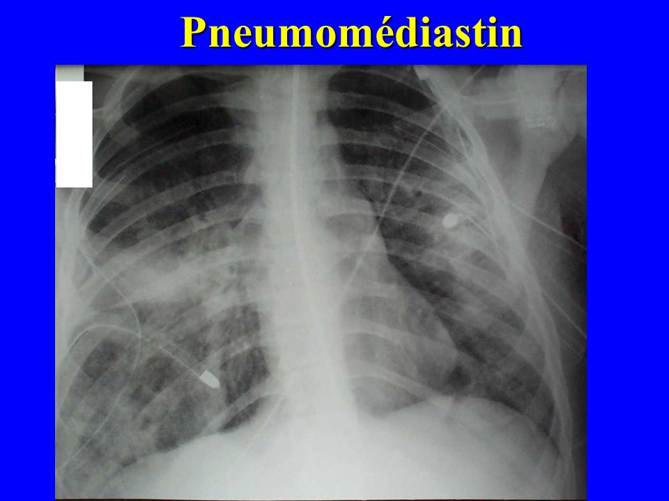 Pneumomédiastin
