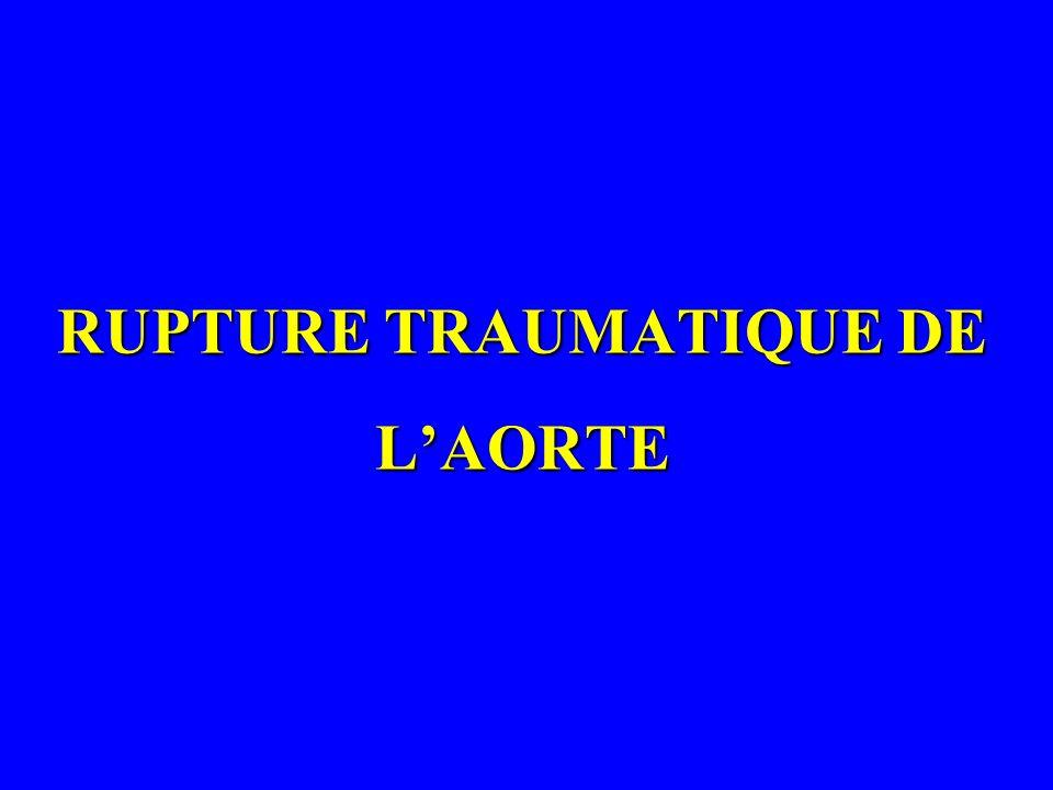 RUPTURE TRAUMATIQUE DE LAORTE