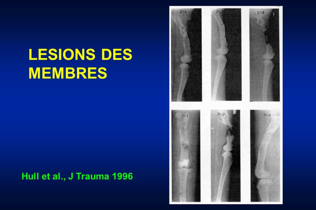 LESIONS DES MEMBRES Hull et al., J Trauma 1996