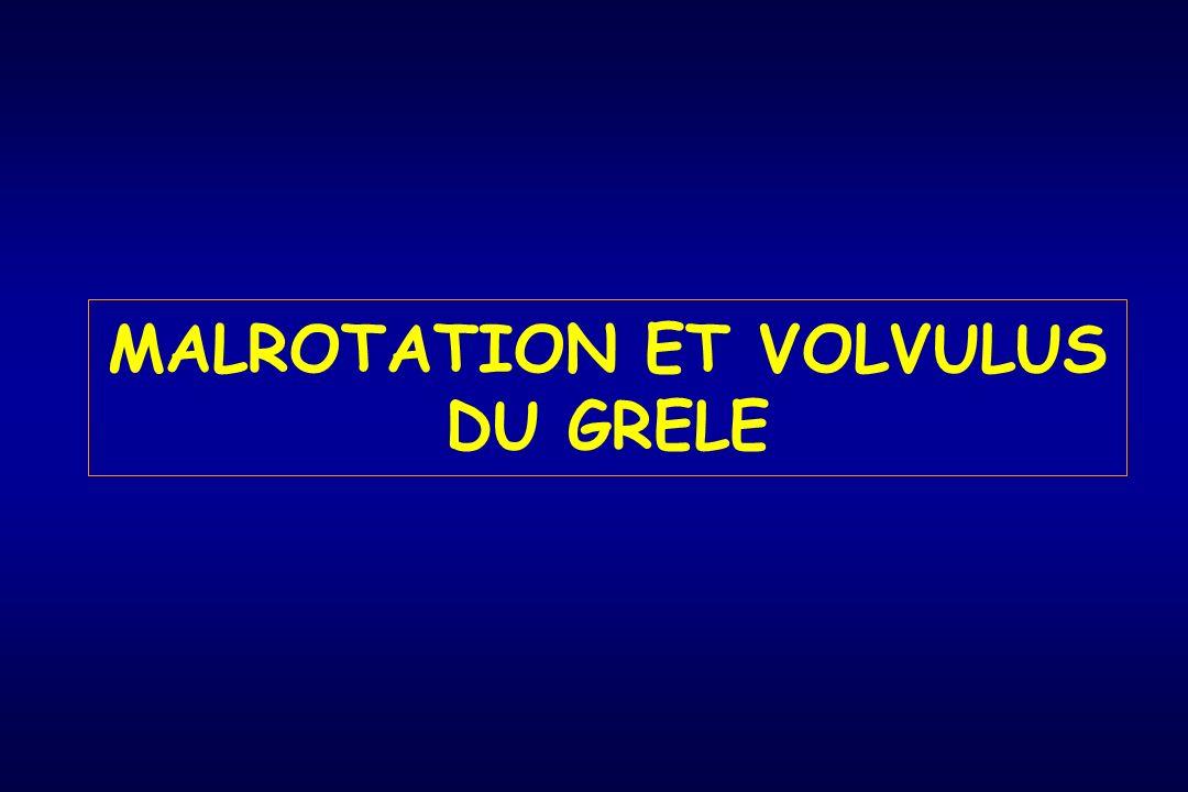 MALROTATION ET VOLVULUS DU GRELE
