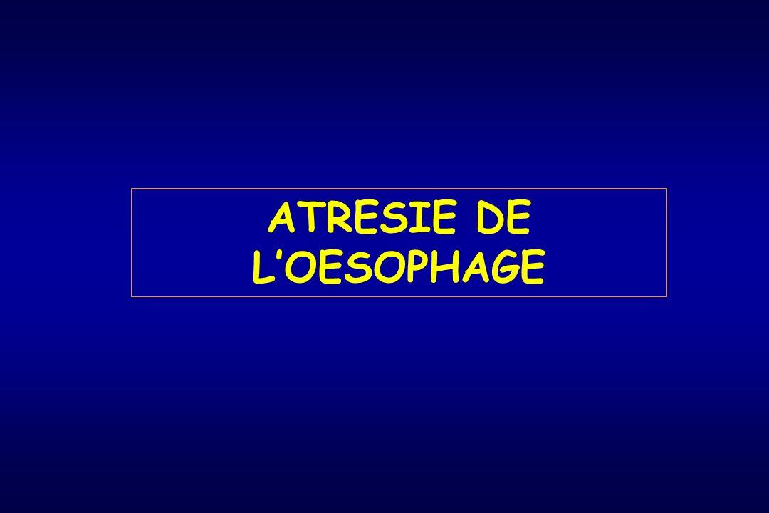 ATRESIE DE LOESOPHAGE