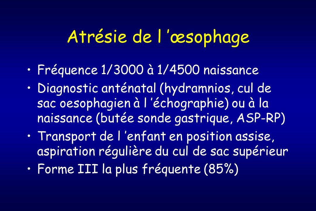 Atrésie de l œsophage Fréquence 1/3000 à 1/4500 naissance Diagnostic anténatal (hydramnios, cul de sac oesophagien à l échographie) ou à la naissance