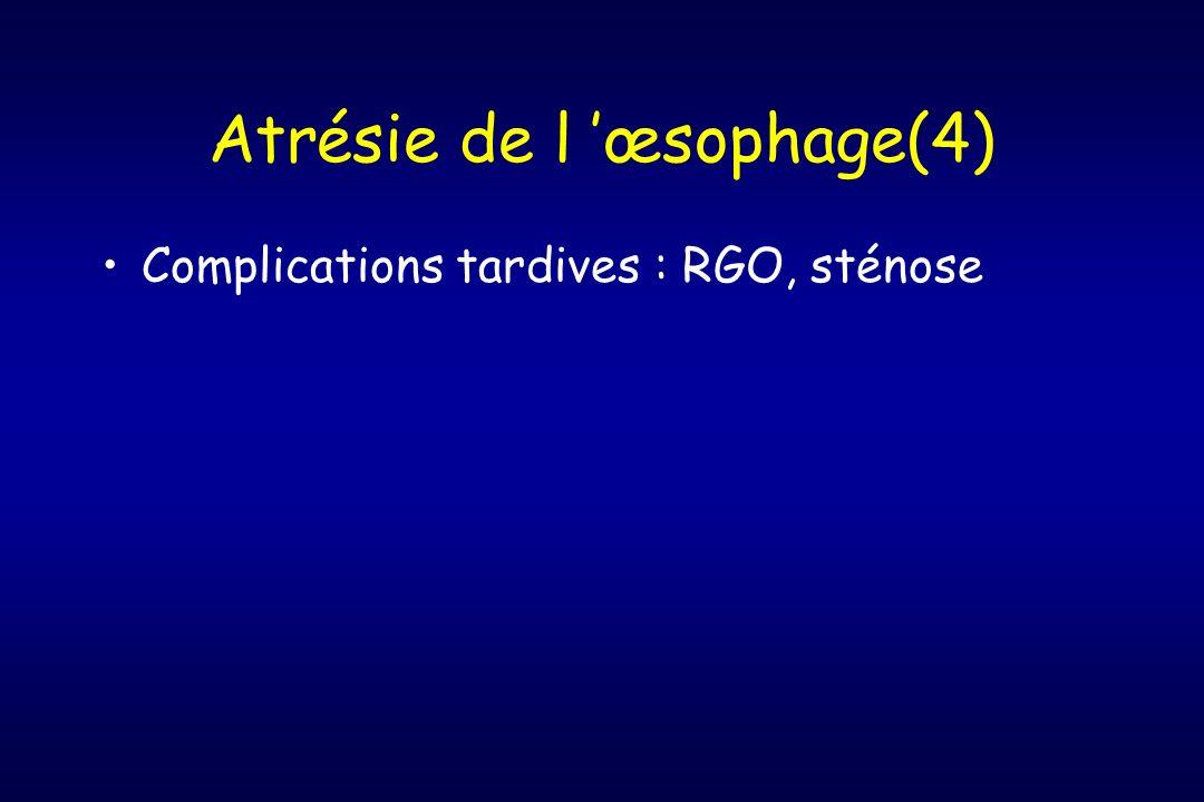 Atrésie de l œsophage(4) Complications tardives : RGO, sténose
