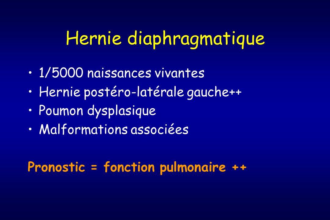 Hernie diaphragmatique 1/5000 naissances vivantes Hernie postéro-latérale gauche++ Poumon dysplasique Malformations associées Pronostic = fonction pul