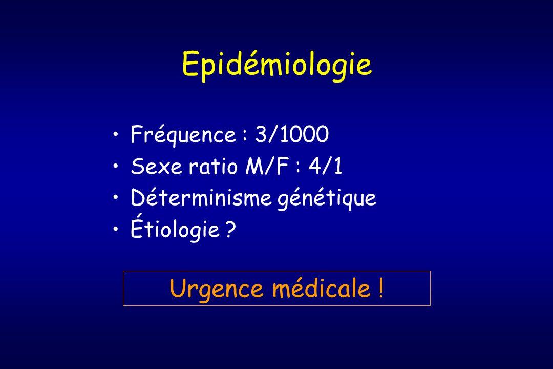 Epidémiologie Fréquence : 3/1000 Sexe ratio M/F : 4/1 Déterminisme génétique Étiologie ? Urgence médicale !