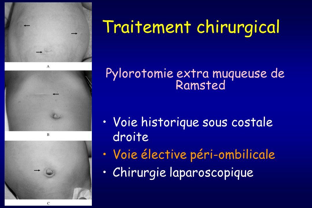 Traitement chirurgical Pylorotomie extra muqueuse de Ramsted Voie historique sous costale droite Voie élective péri-ombilicale Chirurgie laparoscopiqu