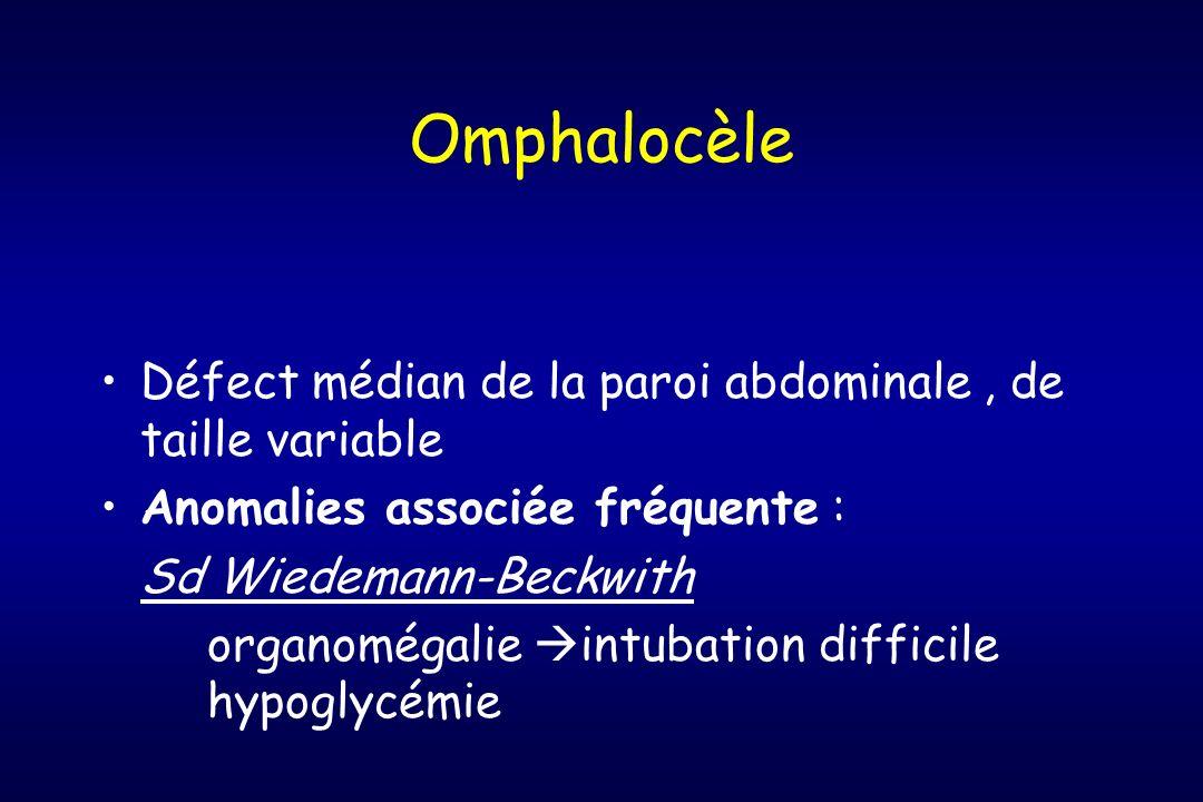 Omphalocèle Défect médian de la paroi abdominale, de taille variable Anomalies associée fréquente : Sd Wiedemann-Beckwith organomégalie intubation dif