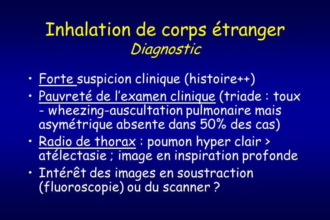 Inhalation de corps étranger Diagnostic Forte suspicion clinique (histoire++) Pauvreté de lexamen clinique (triade : toux - wheezing-auscultation pulm