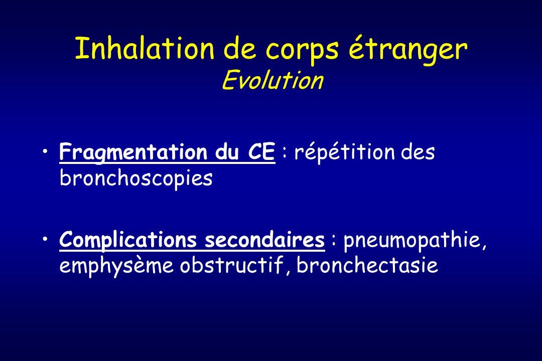 Inhalation de corps étranger Evolution Fragmentation du CE : répétition des bronchoscopies Complications secondaires : pneumopathie, emphysème obstruc