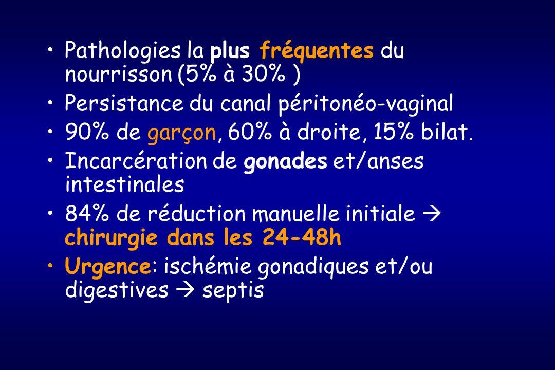 Pathologies la plus fréquentes du nourrisson (5% à 30% ) Persistance du canal péritonéo-vaginal 90% de garçon, 60% à droite, 15% bilat. Incarcération