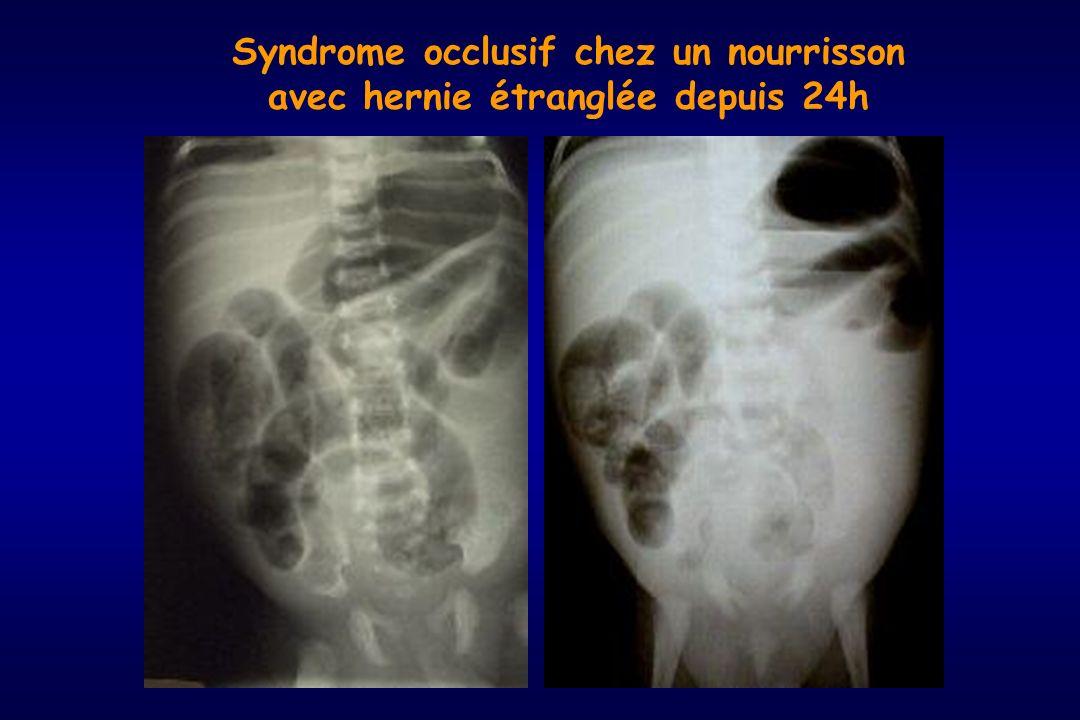 Syndrome occlusif chez un nourrisson avec hernie étranglée depuis 24h