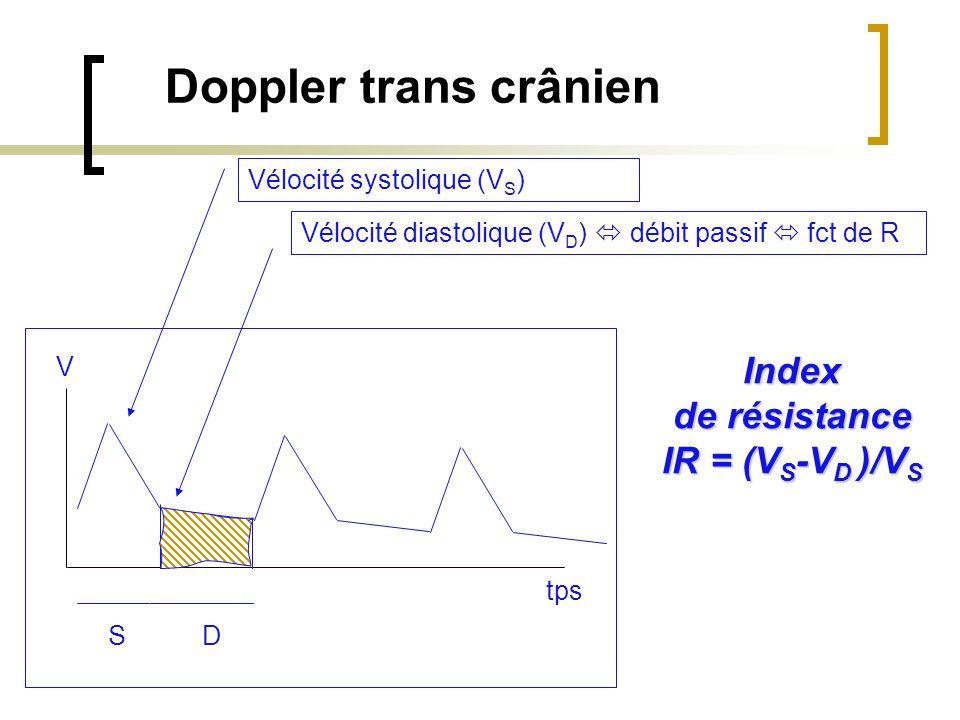 SD Doppler trans crânien Vélocité diastolique (V D ) débit passif fct de R Vélocité systolique (V S ) tps V Index de résistance IR = (V S -V D )/V S