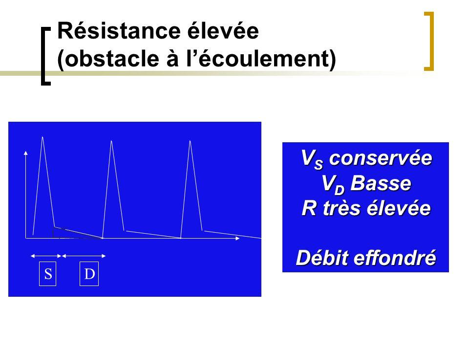 Résistance élevée (obstacle à lécoulement) SD V S conservée V D Basse R très élevée Débit effondré