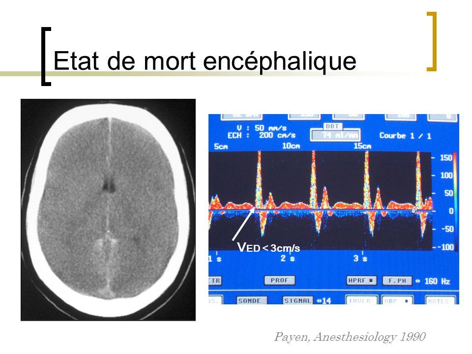 Etat de mort encéphalique Payen, Anesthesiology 1990 V ED < 3cm/s