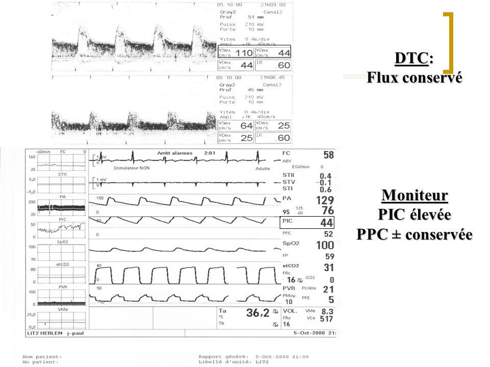 DTC: Flux conservé Moniteur PIC élevée PPC ± conservée