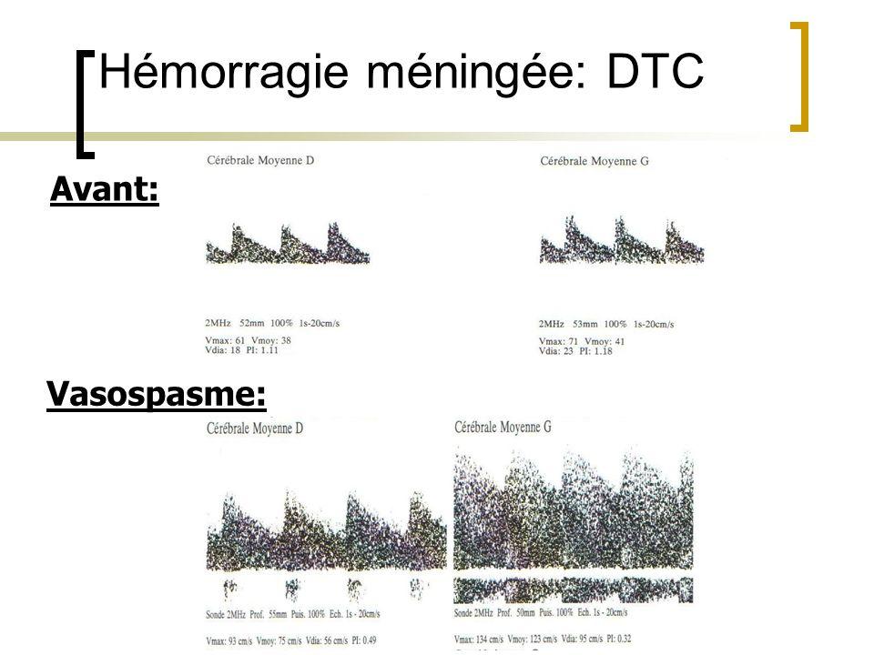 Avant: Vasospasme: Hémorragie méningée: DTC