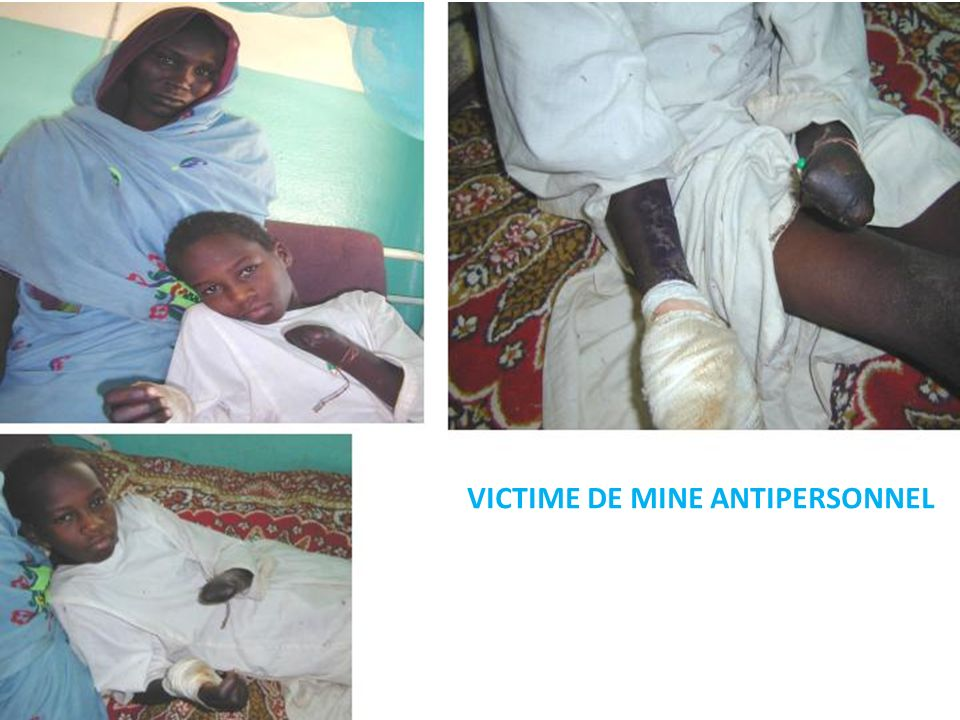 VICTIME DE MINE ANTIPERSONNEL