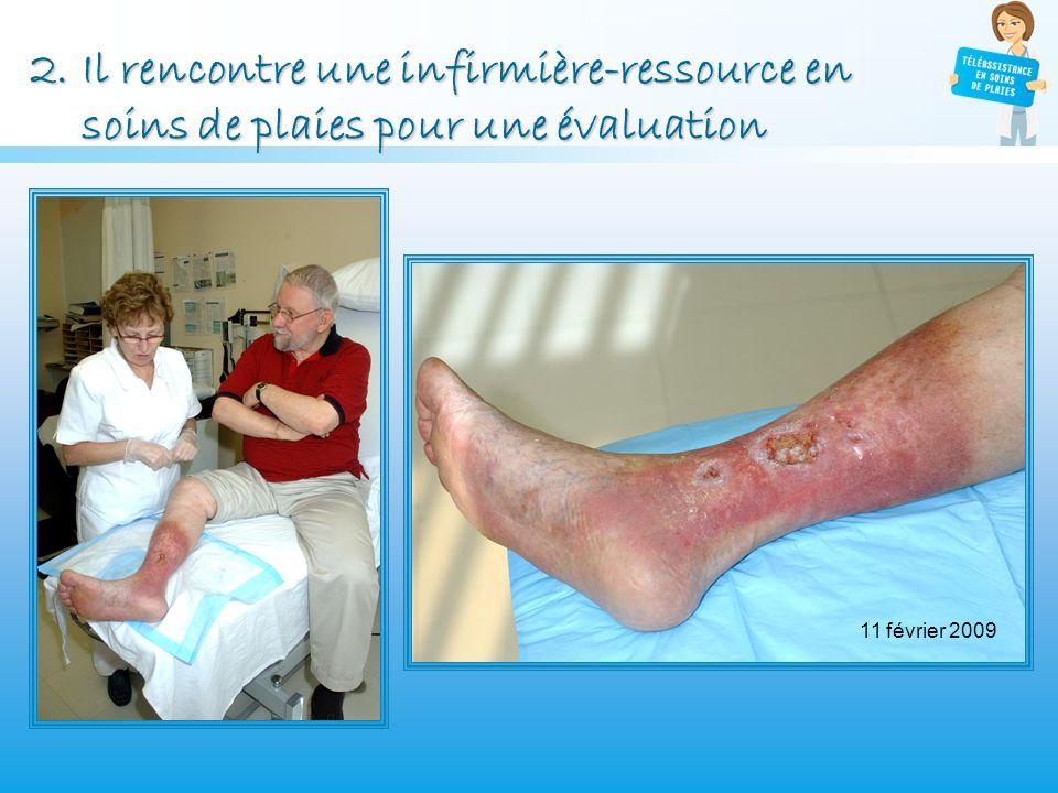 2.Il rencontre une infirmière-ressource en soins de plaies pour une évaluation 11 février 2009