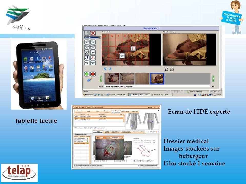 Tablette tactile Ecran de l'IDE experte Dossier médical Images stockées sur hébergeur Film stocké 1 semaine
